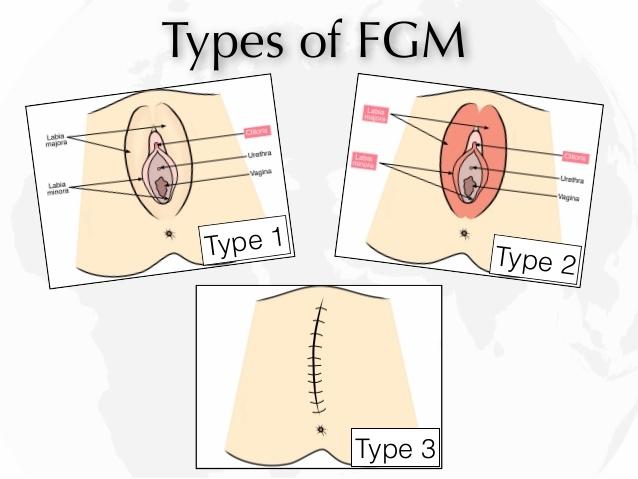 circumcise women process image